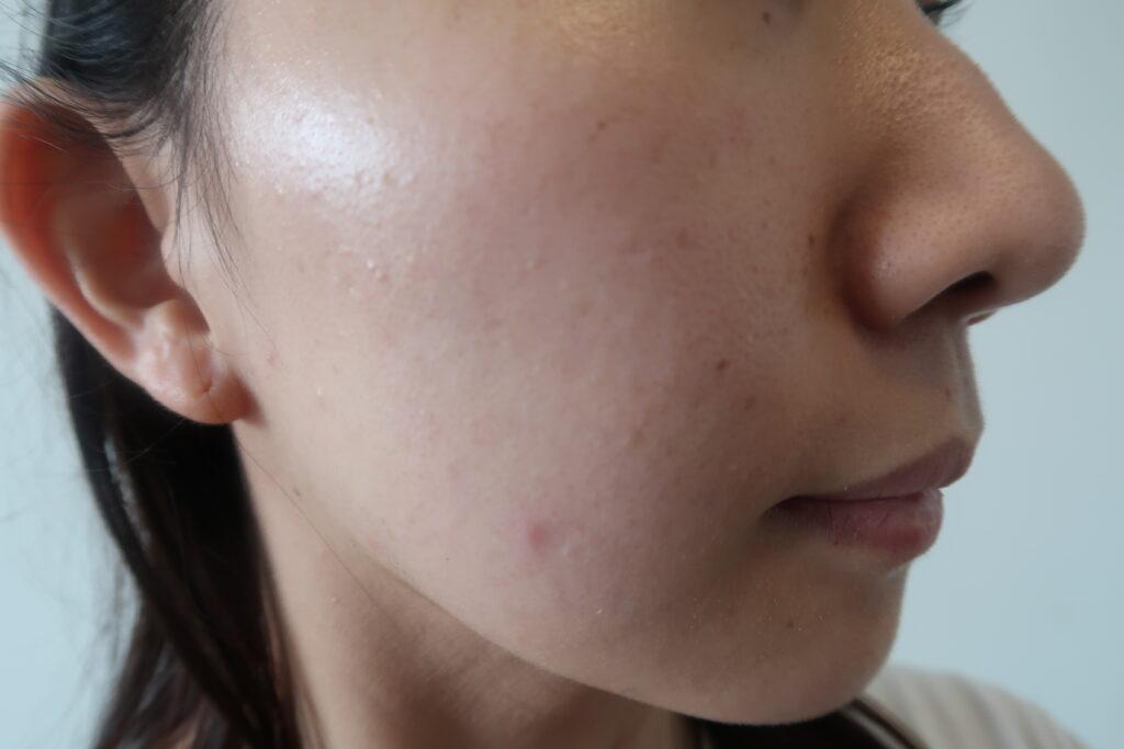 レーザー シミ 効果 取り シミ取り放題が1万円!?顔のシミ取りレーザーが安いおすすめクリニック